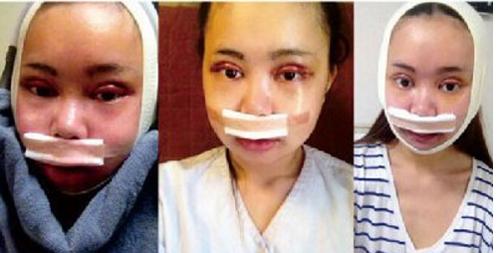 Cô gái Trung Quốc chi 100 triệu Nhân dân tệ để phẫu thuật giống Angelababy - ảnh 3