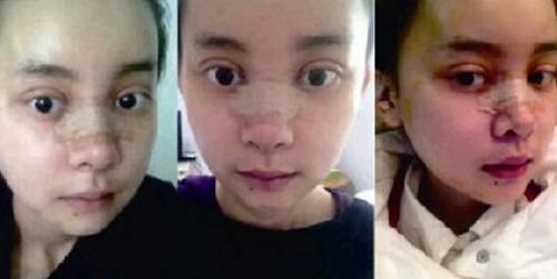20 ngày sau ca đại phẫu, khuôn mặt của cô vẫn chưa hoàn toàn bình phục.