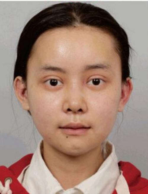1 tháng sau khi phẫu thuật, khuôn mặt của Wu Yuqing vẫn còn sưng nề ở nhiều vị trí.