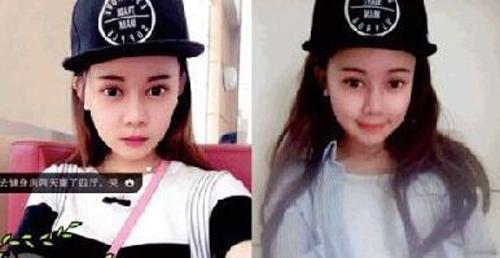 Cô gái Trung Quốc chi 100 triệu Nhân dân tệ để phẫu thuật giống Angelababy - ảnh 7