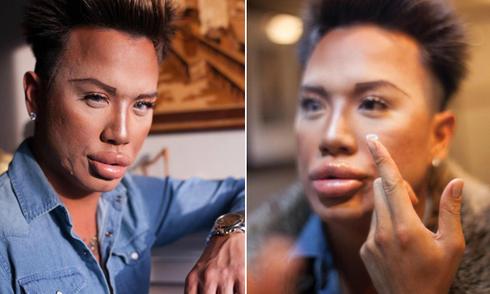 Chàng trai thường xuyên tiêm botox để giống búp bê Ken