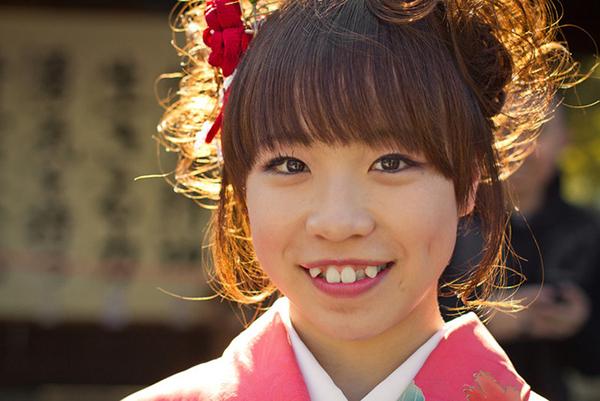 Không chỉ phái đẹp mà ngay cả nam giới Nhật Bản cũng được đánh giá cao hơn khi có chiếc răng khểnh. Họ coi răng khểnh như một tiêu chuẩn nhan sắc. Chính vì vậy, thay vì đi chỉnh nha để có hàm răng đều đặn hơn, người Nhật còn đi trồng răng khểnh.