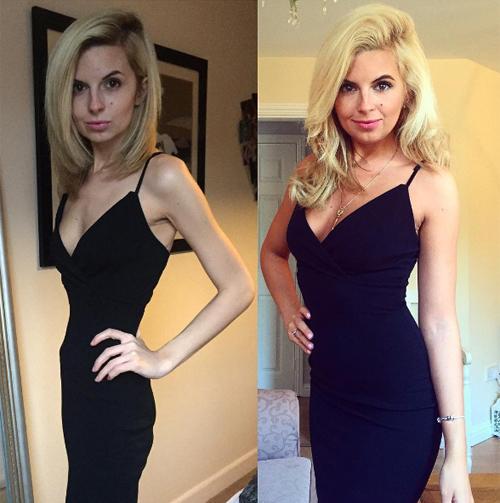 Hayley Harris bị ám ảnh về chuyện cân nặng đến độ cô thường xuyên bỏ đói bản thân. Cô đã phải nhập viện vì chứng rối loạn ăn uống.