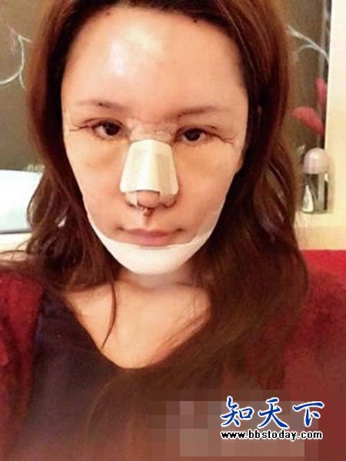 Người mẫu 9X cho biết, cô sẽ còn tiếp tục phẫu thuật để hoàn thiện nhan sắc.