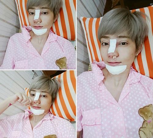 kim-nha-next-top-giong-y-duc-soobin-hoang-son-sau-phau-thuat-1