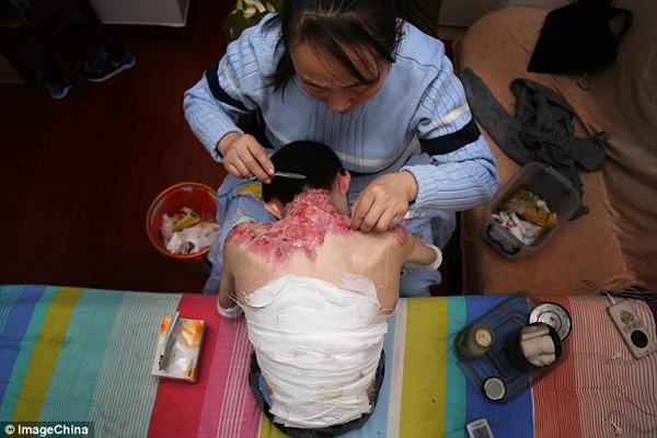 chang-trai-19-nam-song-voi-lan-da-mong-nhu-canh-buom-2