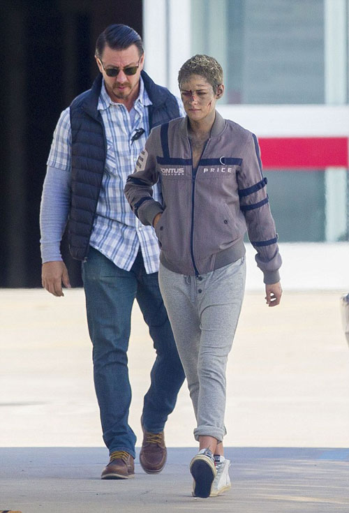 Kristen Stewart mặt bầm dập ở trường quay - ảnh 1