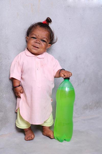 Manpreet Singh và thân hình bé như trẻ  6 tháng tuổi. Ảnh: