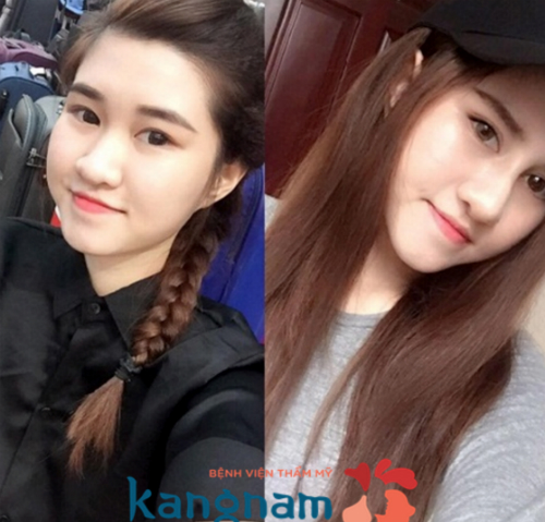 kangnam-mien-phi-3-suat-nang-mui-mung-khai-truong-chuyen-khoa-thm-my