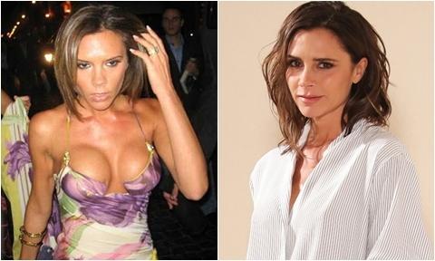 10 người đẹp âm thầm từ bỏ bộ ngực 'khủng'