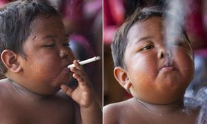 Bé 2 tuổi từng hút 40 điếu thuốc một ngày giờ ra sao?