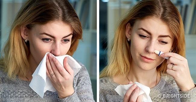 Giảm mẩn đỏ ở mũi khi thời tiết thay đổi.