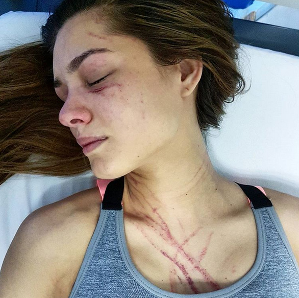Hoa hậu Trái đất bị nữ ca sĩ Venezuela đánh trọng thương