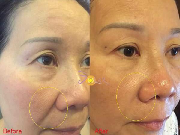 xoa-nhan-nang-co-mat-bang-cong-nghe-ultherapy-cay-collagen