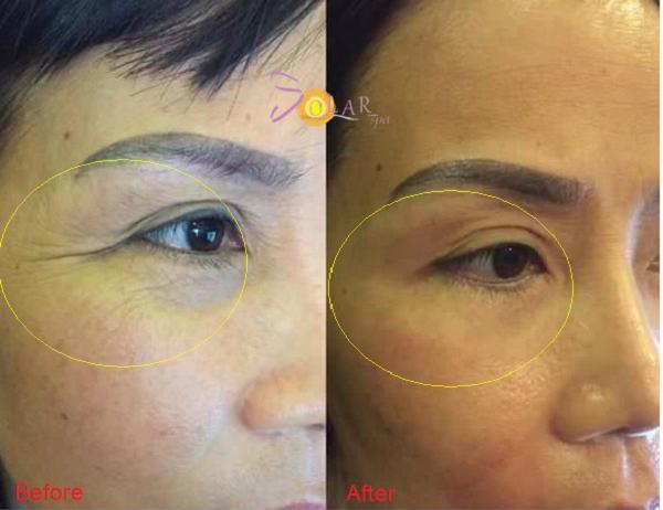 xoa-nhan-nang-co-mat-bang-cong-nghe-ultherapy-cay-collagen-1