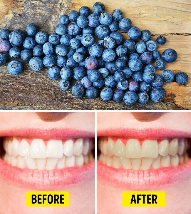 Việt quất rất tốt cho sức khỏe và làn da nhưng lại có thể khiến răng bị ố vàng nếu ăn quá nhiều.