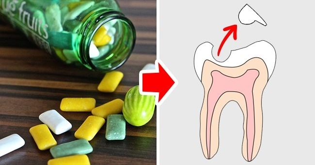 Kể cả khi bạn dùng kẹo cao su không đường, hàm răng vẫn sẽ bị ảnh hưởng. Cử động nhai liên tục trong thời gian dài có thể mài mòn cầu răng. Ngoài ra, khi nhai kẹo cao su, nước bọt tiết liên tục cũng làm tăng nồng độ kiềm