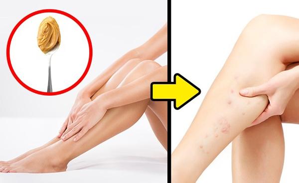 Dùng bơ hạt mỡ thay cho kem cạo lông là một cách làm đẹp sai lầm. Chúng có thể gây ra tình trạng viêm lỗ chân lông nghiêm trọng.