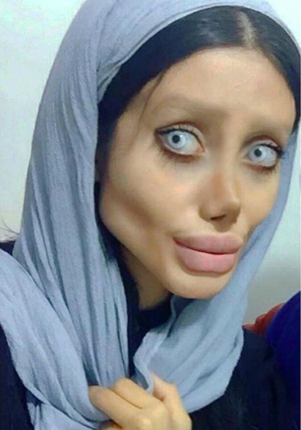 Sahar đã trải qua tổng cộng hơn 50 lần phẫu thuật thẩm mỹ nhưng nhận lại kết quả nằm ngoài dự đoán.