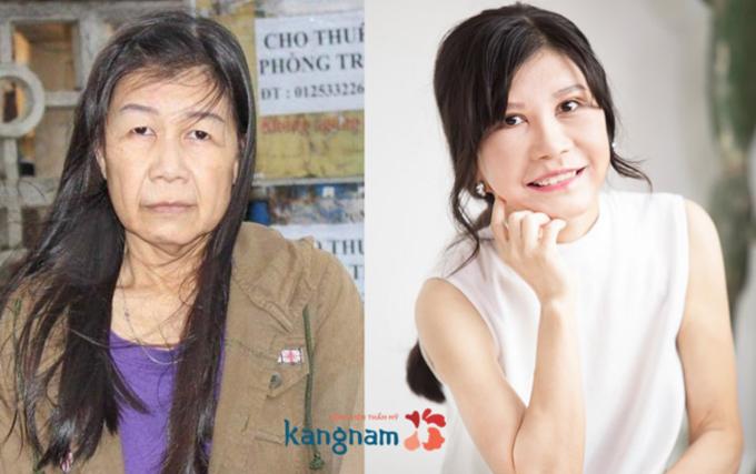 Kangnam sắp ra mắt bệnh viện thẩm mỹ tiêu chuẩn Hàn tại miền Bắc - ảnh 4