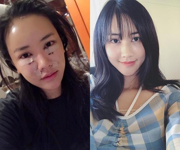 Cuối tháng 5/2017, Maya công khai hình ảnh phẫu thuật thẩm mỹ trên trang cá nhân. Cô đã sang Hàn Quốc để thực hiện cấy mỡ trán, nâng chỉ và cắt bọng mỡ mắt