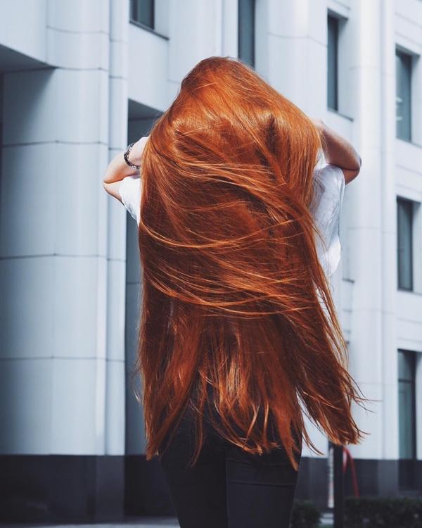 Năm 18 tuổi, cô được chẩn đoán mắc chứng rụng tóc khiến tóc rụng từng mảng, lộ ra những khoảng trống trầy xước trên da đầu nh