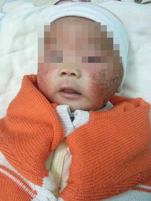 Bé gái bị viêm da bội nhiễm sau khi được tắm lá và bôi các loại thuốc trị chàm cho trẻ. Ảnh: NVCC.