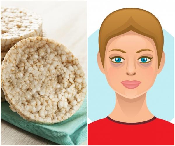 Bánh gạo Món ăn vặt khoái khẩu của nhiều chị em thực sự có hại cho làn da. Bánh gạo hầu như không chứa thành phần dinh dưỡng nào, nếu có thì cũng chỉ với hàm lượng rất nhỏ. Quan trọng hơn cả là món ăn này rất dễ gây nghiện, khiến bạn ăn không thể ngừng, từ đó làm tăng cân. Ăn quá nhiều sẽ khiến làn da nổi mụn