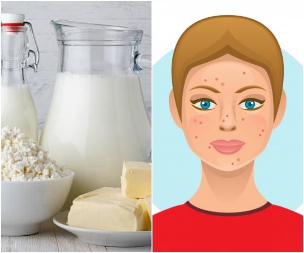 Sữa và các chế phẩm từ sữa Nếu sữa và các loại phô mai là món ăn yêu thích của bạn thì nên cập nhật ngay thông tin này. Sữa và các chế phẩm từ sữa đều không tốt cho cơ thể nếu tiêu thụ một lượng quá nhiều. Tiến sĩ David Lortscher, nhà sáng lập Curology chia sẻ trên trang The List: Các sản phẩm sữa có chứa các thành phần nội tiết tố nhất định có thể kích thích sản xuất dầu trên da. Lượng dầu sản xuất càng nhiều càng tăng khả năng làm tắc nghẽn các lỗ chân lông, dẫn tới mụn trứng cá.