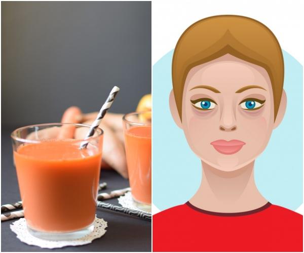 Nước ép trái cây Nước ép trái cây thường được khuyên dùng để bổ sung vitamin, làm đẹp da nhưng thực chất chúng cũng mang đến những tác dụng phụ nhất định khi sử dụng quá nhiều. Nước ép trái cây chứa khá nhiều đường, nước ép của một số loại quả còn chứa hàm lượng đường tương đương một lon soda. Để đảm bảo sức khoẻ và sự an toàn cho làn da, nên chọn các loại trái cây có vị thanh hay chua và sử dụng với khẩu phần hợp lý.
