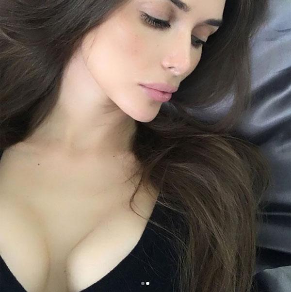 Phần ngực của Yulia biến dạng như hình vuông. Ảnh: East2West News