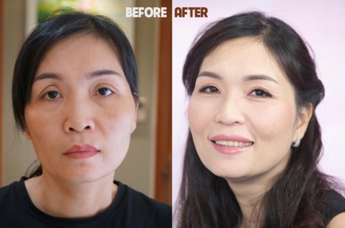 Chị Tạ Thị Loan trước và sau cắt mí mắt tại JW.