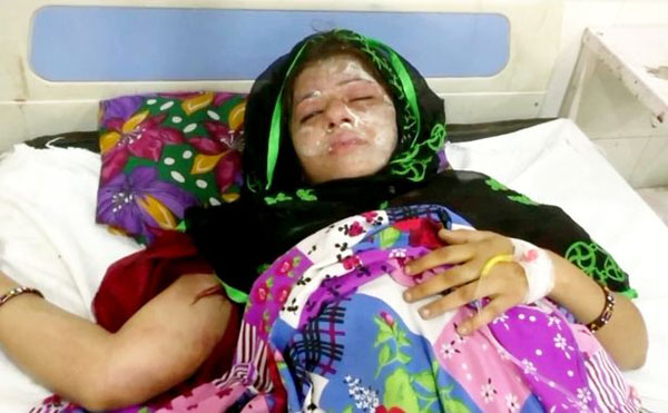 Farah đang nằm điều trị tại bệnh viện do bị bỏng nặng. Ảnh: SWNS