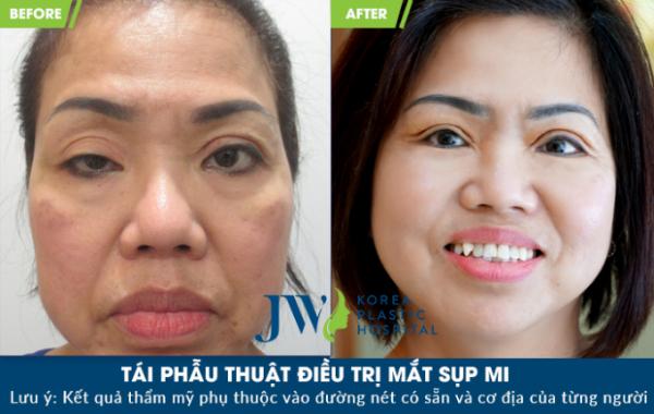 Nữ Việt kiều phẫu thuật thành công đôi mắt sụp mí bẩm sinh - 1