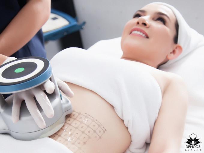 Giúp mẹ sau sinh loại bỏ bụng mỡ chảy xệ không dao kéo - ảnh 2