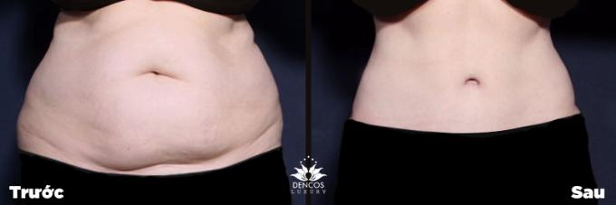 Giúp mẹ sau sinh loại bỏ bụng mỡ chảy xệ không dao kéo - ảnh 3