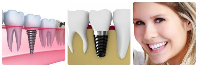 quá trình trồng răng Implant tại Nha khoa Đông Nam