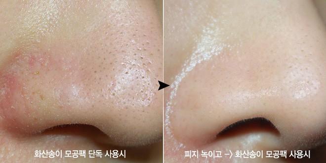 Mặt nạ dạng lột làm sạch mụn đầu đen, cải thiện kích thước lỗ chân lông.