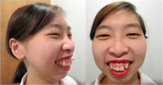 Chị gái Nam Em sởn gai óc trước cô gái bị rớt hàm  - 1
