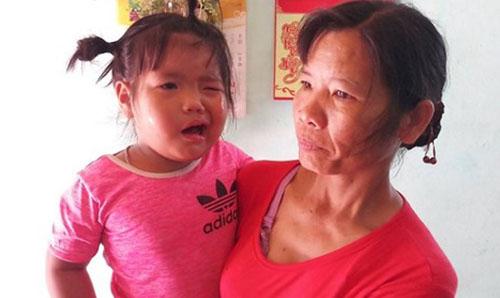 Bé gái bị liệt dây thần kinh, méo miệng phải nhập viện điều trị.