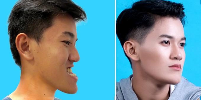 Khánh Du với gương mặt cân đối và đẹp hơn sau phẫu thuật hàm móm.