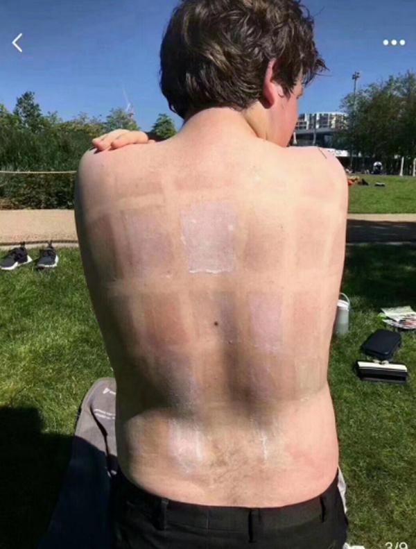 Sau 3 giờ, từng ô trên da thể hiện hiệu quả bảo vệ da của từng loại kem chống nắng. Có vùng da gần như không thay đổi song cũng có vùng da đỏ ứng hay sạm đen vì nắng.