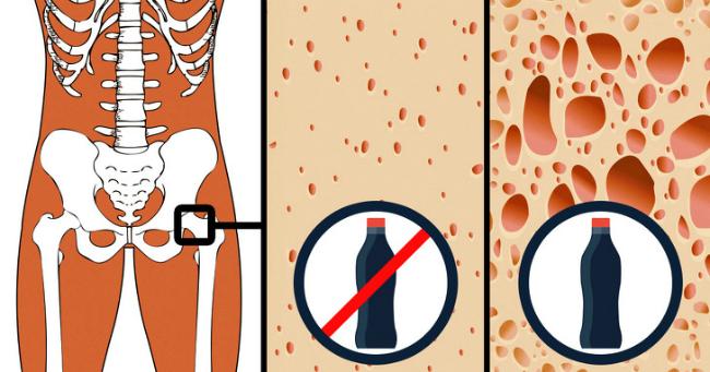 9 thực phẩm có thể phá hủy cơ thể bạn - 8