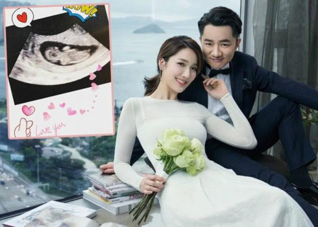 Chu lun TVB mung ron khi ba xa hoa hau mang bau