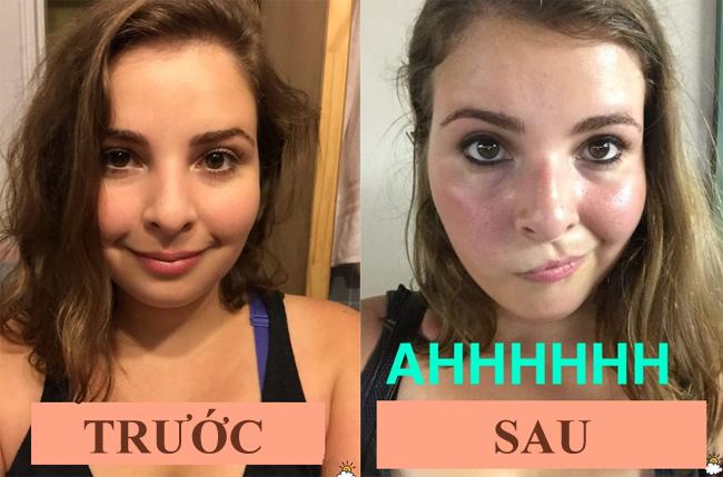 Caralynn thấy da khỏe hơn sau một tuần không rửa mặt và tránh xa các loại hóa chất.
