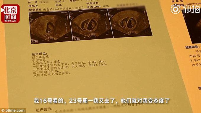Kết quả siêu âm cho thấy bà Zhang đang mang thai đôi 9 tuần. Ảnh: Btime.