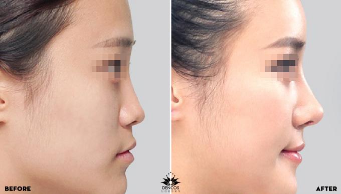 Bốn giải pháp nâng mũi S-line đang được ưu đãi đến 20% - ảnh 4