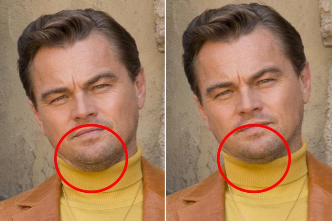 Gương mặt Leonardo thanh thoát hơn nhờ giảm bớt nọng cằm.
