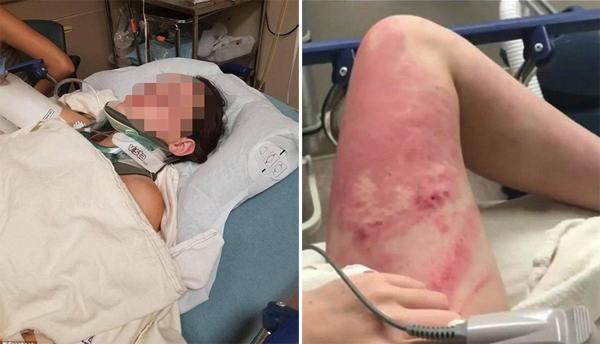 Thiếu nữ 16 tuổi nguy kịch khi được đưa vào viện, một bên chân sưng phồng, đỏ rát sau cú rơi. Ảnh: Facebook.