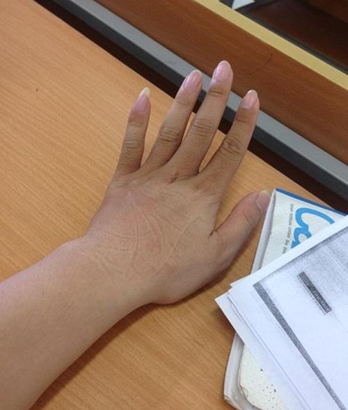 Bàn tay có sự khác biệt của các nàng ninja mặc áo chống nắng.